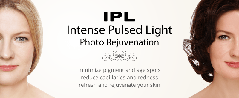 IPL Treatments Jupiter, FL | West Palm Beach IPL Treatments