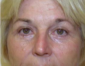 Blepharoplasty Before and After Pictures Jupiter, FL
