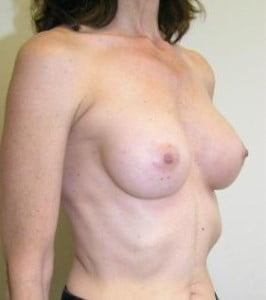 Breast Augmentation Before and After Pictures Jupiter, FL