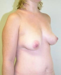 Breast Lift Before and After Pictures Jupiter, FL
