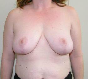 Breast Reduction Before and After Pictures Jupiter, FL