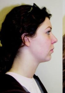 Chin Implant Before and After Pictures Jupiter, FL