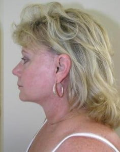 Facelift Before and After Pictures Jupiter, FL
