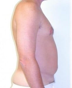 Liposuction Before and After Pictures Jupiter, FL