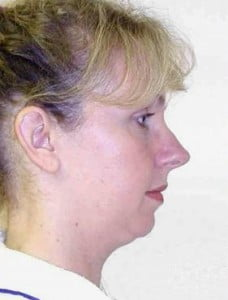 Rhinoplasty Before and After Pictures Jupiter, FL