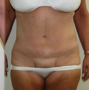 Tummy Tuck Before and After Pictures Jupiter, FL